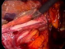 Embedded thumbnail for Dr Detruit - cure de hernie inguinale gauche non étranglée TEP